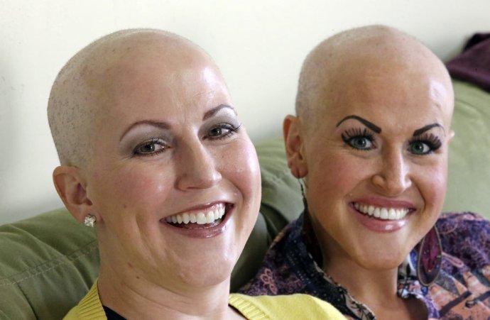 Sestrám diagnostikovali rakovinu prsníka dva týždne po sebe. Ilustračné foto - TASR/AP