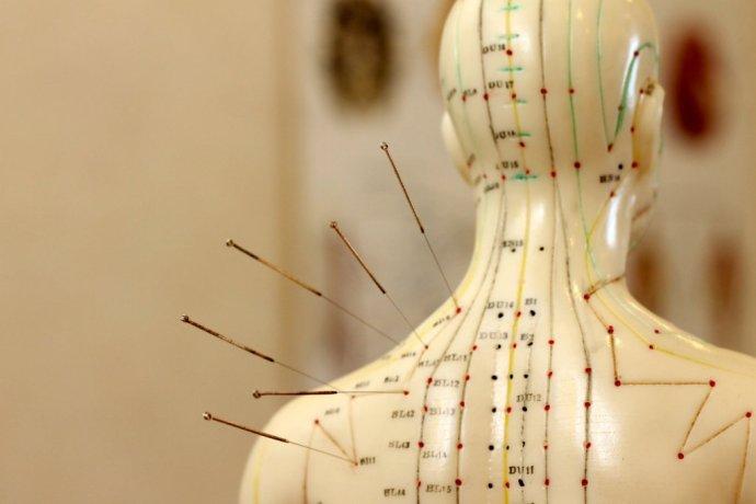 Ihly zapichnuté do akupunktúrnych bodov na meridiánoch. Foto - Fotolia