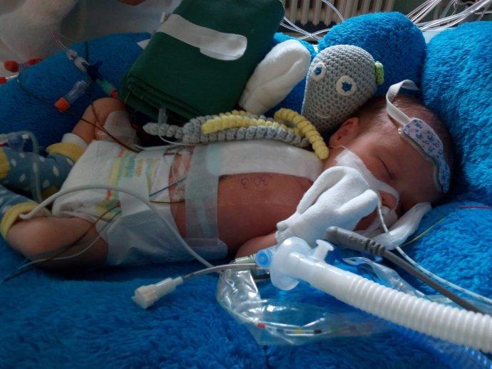 Novorodenec Slavko po operácii chorého srdca. Onedlho bude mať dva roky, ale zatiaľ nerozpráva. Foto - archív B. Cicoňovej